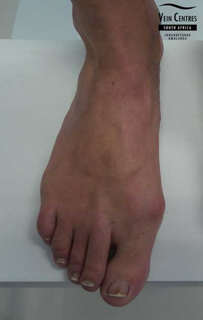 Treated varicose veins right foot