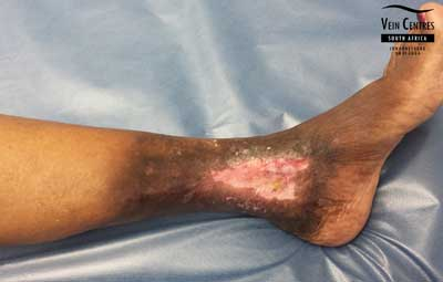 Venous ulcer after treatment