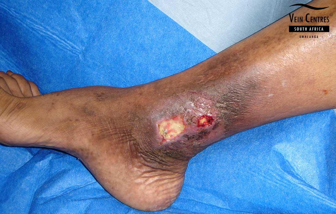 Medical Definition of Stasis ulcer - MedicineNet