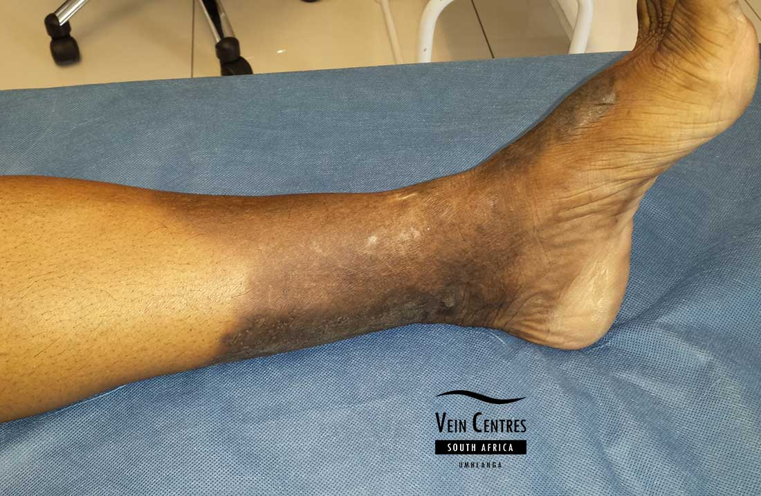 Lipodermatosclerosis of the left lower leg involving 50% of the leg.