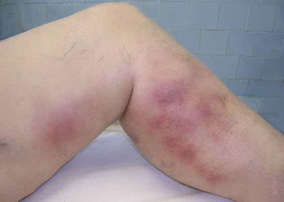 superficial thrombophlebitis pictures