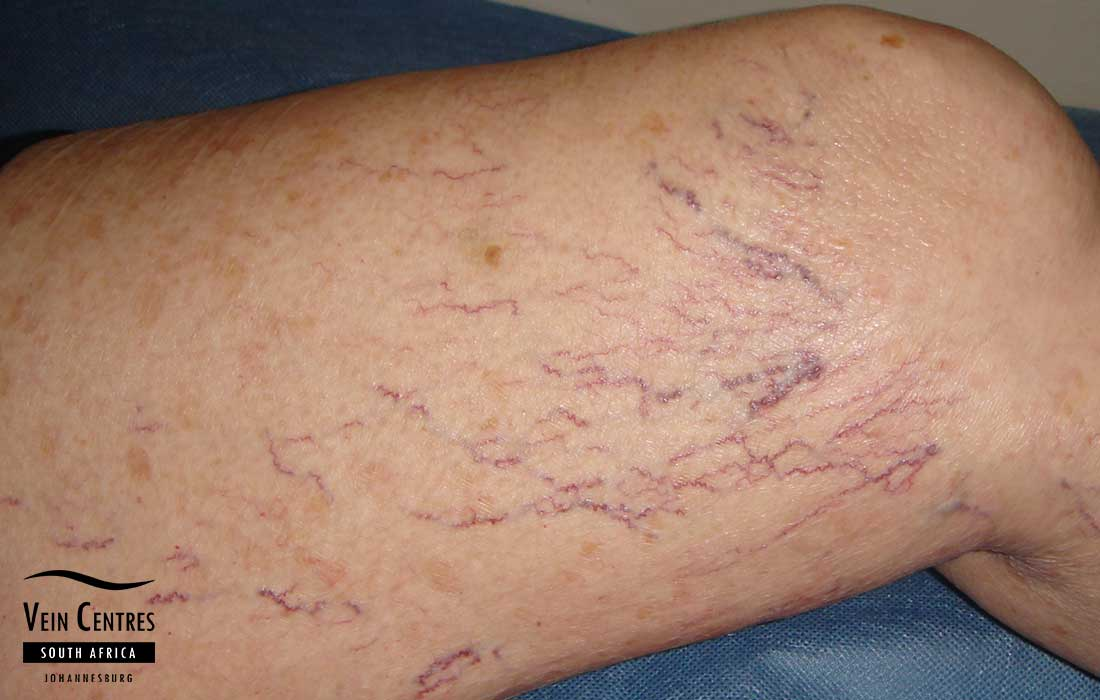 How To Cover Up Leg Veins, Scars and Other Body