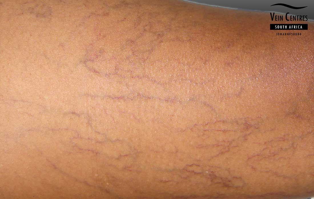 Diffuse Spider veins on darker skin