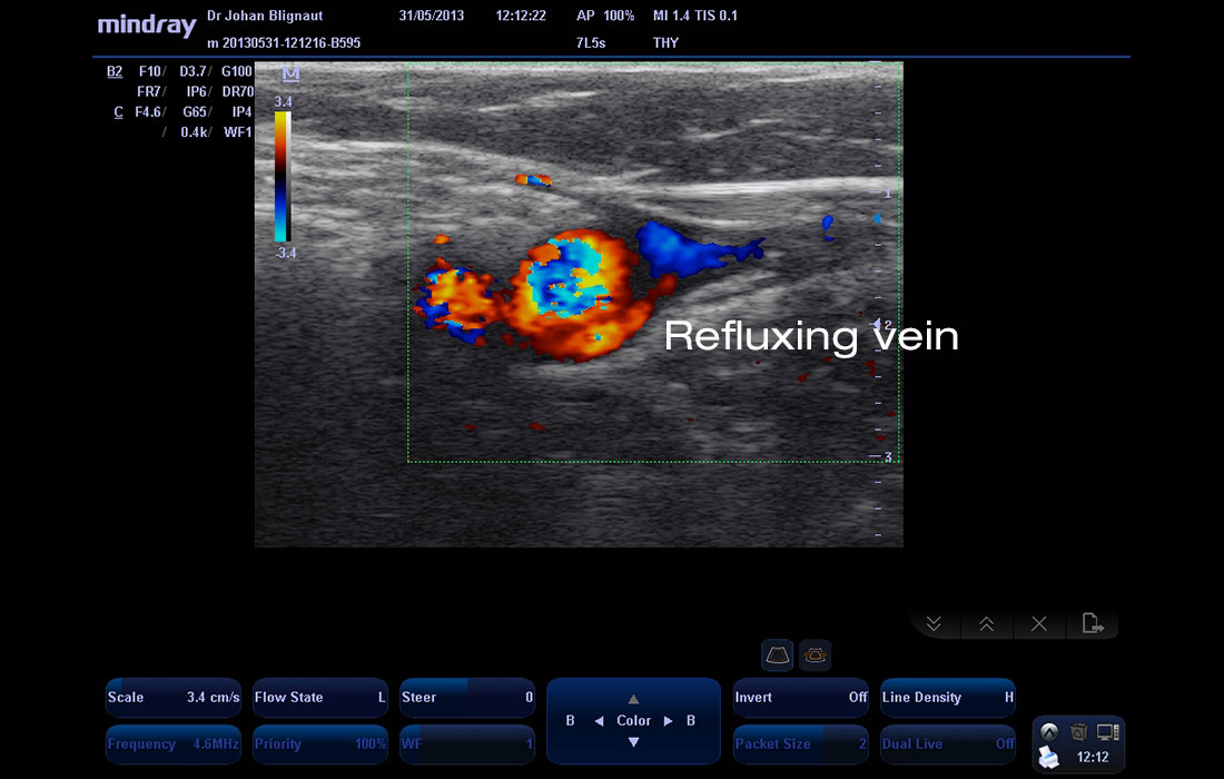 Colour Duplex doppler image of refluxing greater saphenous vein