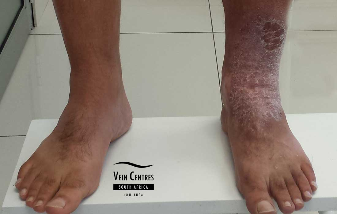 Venous eczema of the left anterior ankle and foot. Healthy right leg