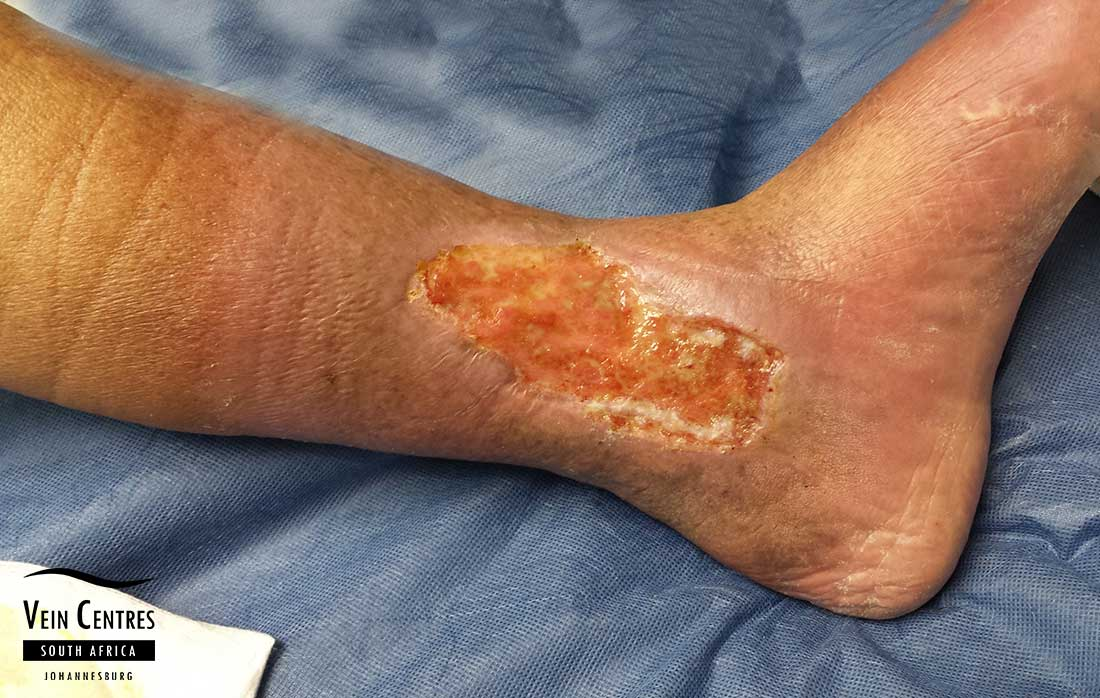 Venous ulcer left medical ankle, minimal slough in base.