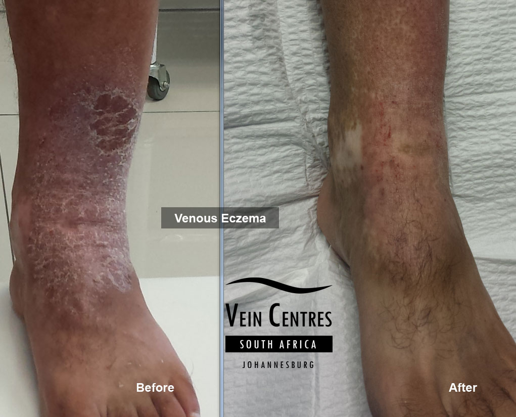of the ankle and foot   Varicose Veins In Feet