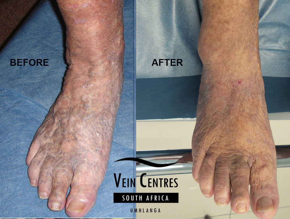 Pictures Of Varicose Veins Feet Kidskunstfo